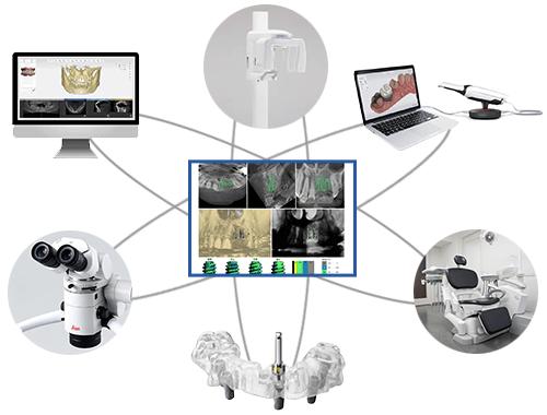 虫歯治療、根管治療