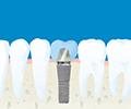 入れ歯をインプラントに替えたい